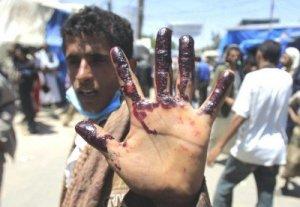 yemen-civil-war-400x277